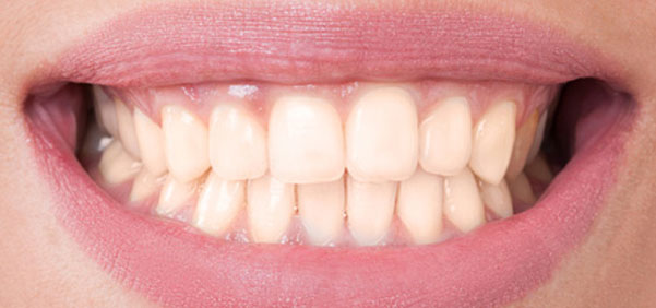 Teeth Whitening Puresmile Reading Dental And Implants